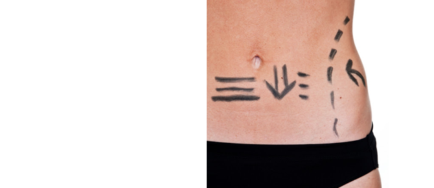 Post-Liposuction Treatment Recovery